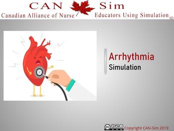 Arrhythmia –  Resuscitation